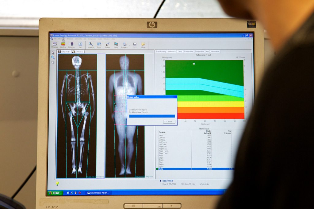 Bone Scan on a Computer
