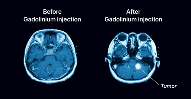 The effect of Gadolinium exposed to MRI scanning.