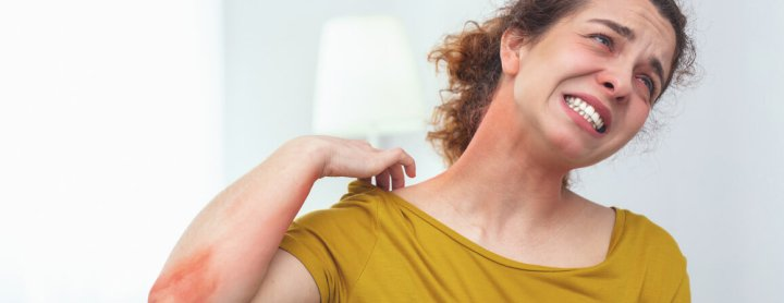Woman with heat rash flaring up on her neck