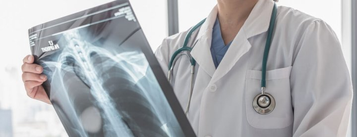 Doctor looking at x-ray of lungs