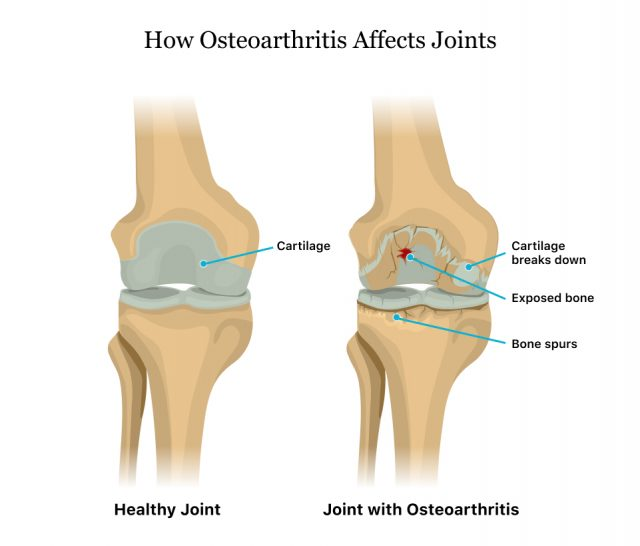 How Osteoarthritis Affects Joints