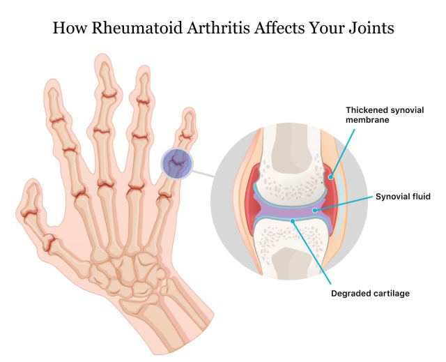 How Rheumatoid Arthritis Affects Your Joints