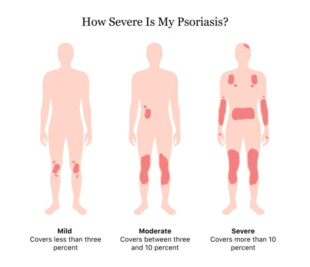 How Severe Is My Psoriasis?