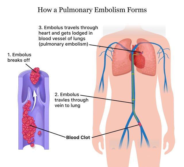 How a Pulmonary Embolism forms