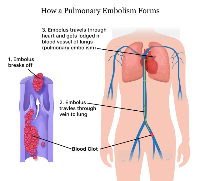 Pulmonary Embolism (PE) | Causes of a Blood Clot in the Lung