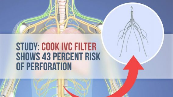 Study: Cook IVC Filter Shows 43 Percent Risk of Perforation