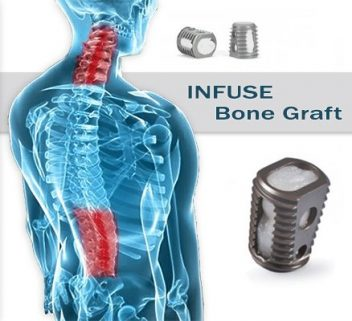 Infuse Bone Graft and Spine illustration