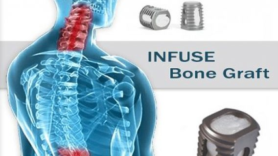 Yale Study: INFUSE Bone Graft Offers Little Benefit, Can Cause Complications