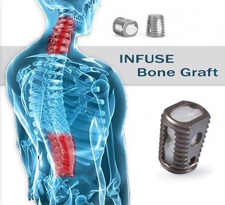 Infuse Bone Graft and Spine illustration