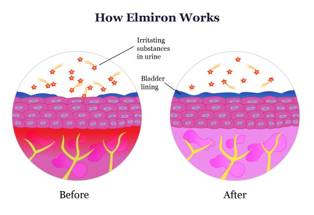 How Elmiron Works