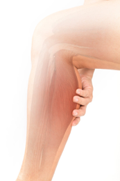 Skin on leg affected by Nephrogenic Systemic Fibrosis