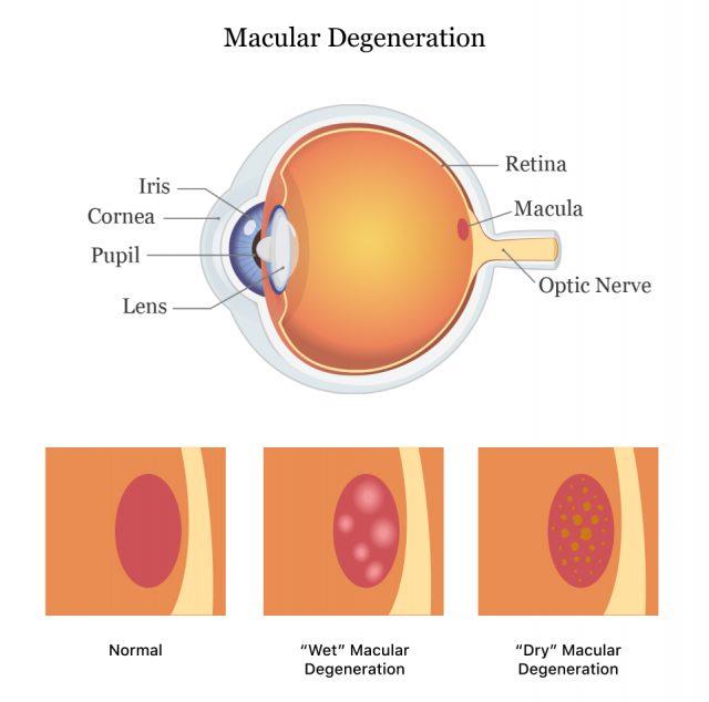 Wet vs. dry macular degeneration