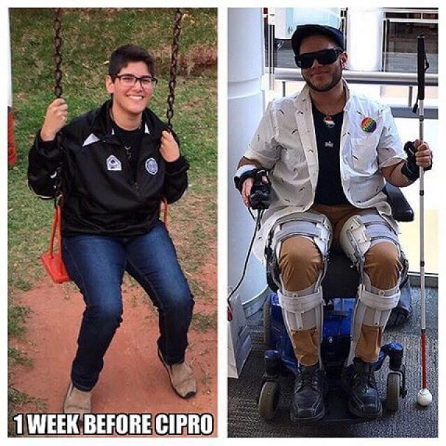 Mateo Cox before and after Cipro