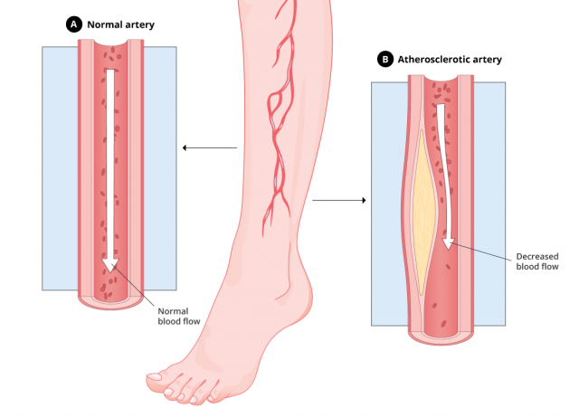 Graphic that compares a normal artery versus an atherosclerotic artery