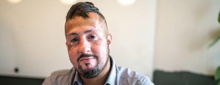 Man with vitiligo on face