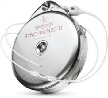 SynchroMed pain pump