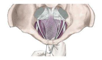 Illustration of Transvaginal Mesh procedure