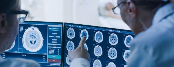 Doctors viewing brain scans