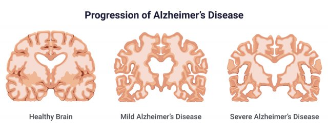 Illustration showing the progression of Alzheimer's Disease