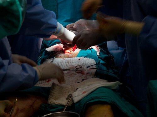 Aortic Repair