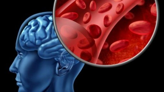 Study: Antidepressants Increase Risk of Bleeding in the Brain and Stroke