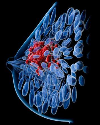 Illustration of breast cancer