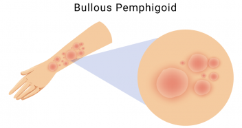 Illustration of bullous pemphigoid