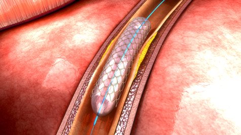 Intravascular Coronary Stent in Vessel
