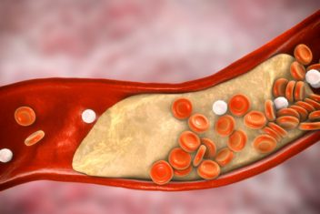 Plaque build-up in arteries