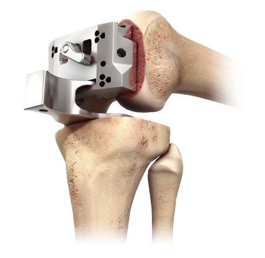 DePuy Sigma Knee System