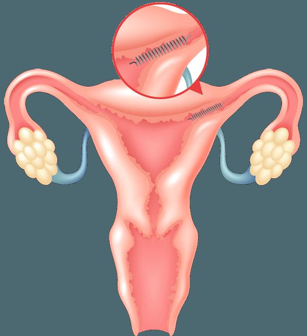 Essure Permanent Birth Control Implant