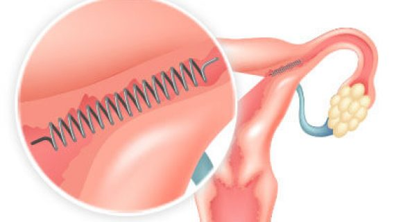 Essure | What Is Essure Birth Control & How Does It Work?