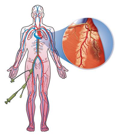 Heart catheter diagram