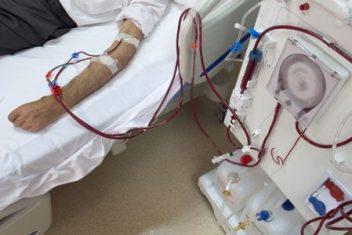 Older Man in Hospital Undergoing Dialysis