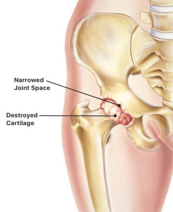 Cartilage damage in hip bone