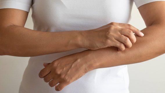 Rash and Skin Disorders