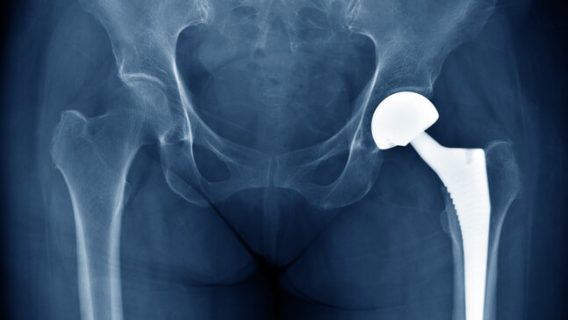 Johnson & Johnson to Discontinue Metal-on-Metal Hip Implants