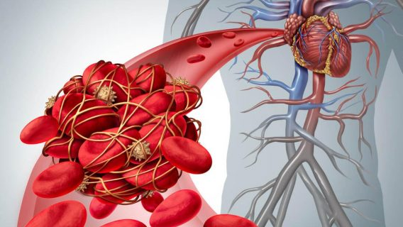 IVC Filters May Increase 30-Day Death Rate in Certain Patients