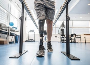 Man standing with amputated leg