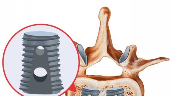 INFUSE Bone Graft