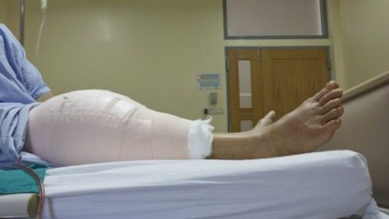 Study: Knee Replacement Patients Likely to Gain Weight after Surgery