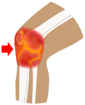 Knee Replacement Areas