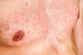 Hives on Man's Chest
