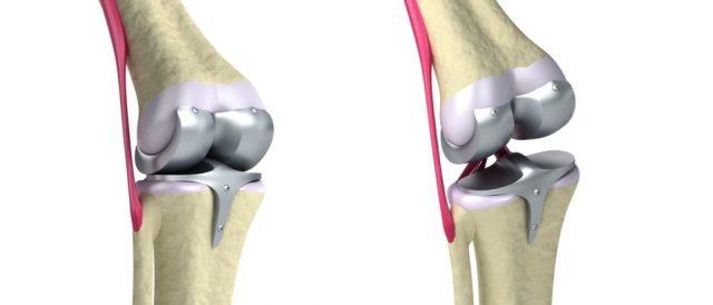 Knee Replacement Recalls Stryker Zimmer Amp Depuy Knee