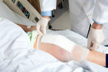 Doctor placing bandage over knee