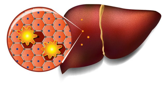 Illustration of hepatotoxicity, toxins attacking the liver