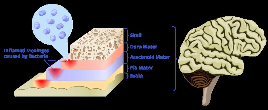 Meningitis diagram