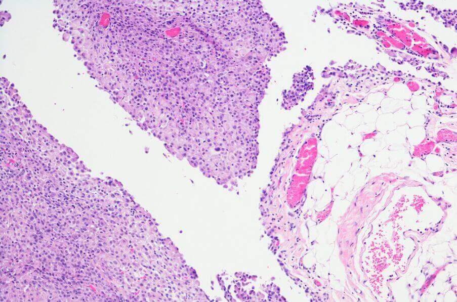 peritoneal mesothelioma micrograph