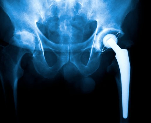 Former News Anchor Warns People About Metal Hip Implants