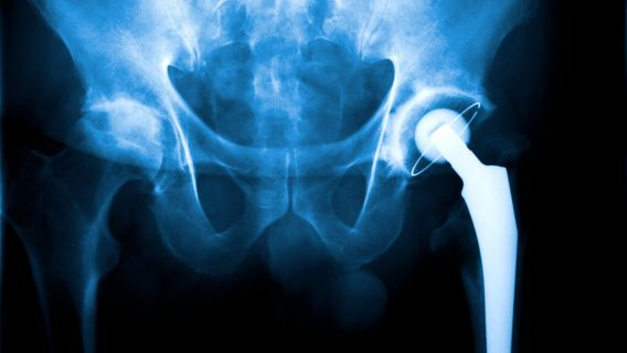 A Recalled Implant Cost '80 Percent of the Muscle in My Hip'